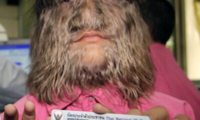 Supattra Sasupan, 11, from Thailand, is the World's Hairiest Girl