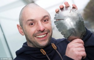 The plate now in his skull is made from strong titanium, the same material used in space shuttles