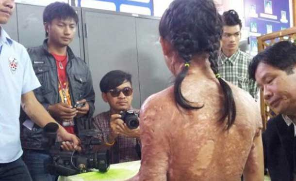 Burmese Child Slave puts Spotlight on Abuse of Foreign Maids in Thailand