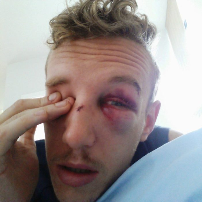 Briton Matt Prior Brutally Attacked Outside Bangkok Nightclub