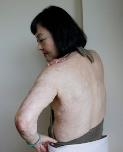 Kim Phuc shows burn scars on her back and left arm
