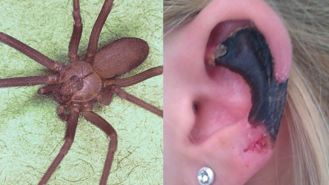Woman's Ear Liquified by Mediterranean recluse spider bite
