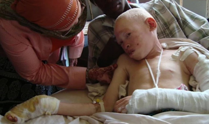 Albino teen attacked for body parts recovers in hospital