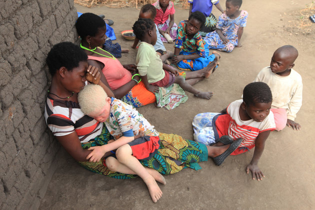 "Edna Cedrick,26,left, holds her surviving albino son after his twin brother who had albinism was snatched from her arms in a violent struggle in this Tuesday, May, 24, 2016 photo in Machinga about 200 kilometres north east of Blantyre Malawi. Cedrick says she is haunted daily by images of the decapitated head of her 9 year old son.At least 18 Albino people have been killed in Malawi in a ""steep upsurge in killings"" since November 2014, and five others have been abducted and remain missing, a new Amnesty International report released Tuesday says. (AP Photo/Tsvangirayi Mukwazhi)"
