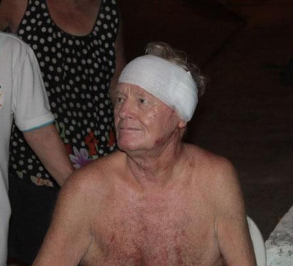 76 Year-old Swiss Pensioner Assaulted in Pattaya by Tomboy