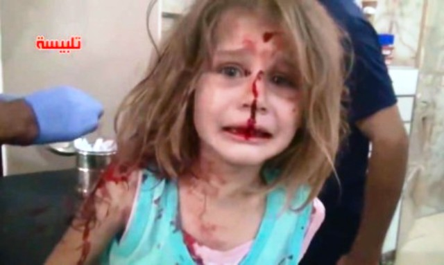 Video: Bloodied Syrian Girl Cries out for Father after Rocket Destroys their Home