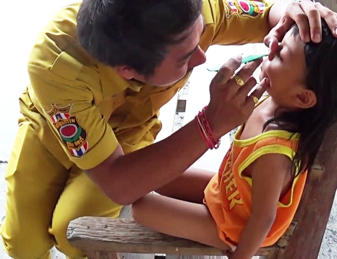 Rescue Worker Saves 4 Year-Old Thai Girl with Dice Stuck Inside her Nose