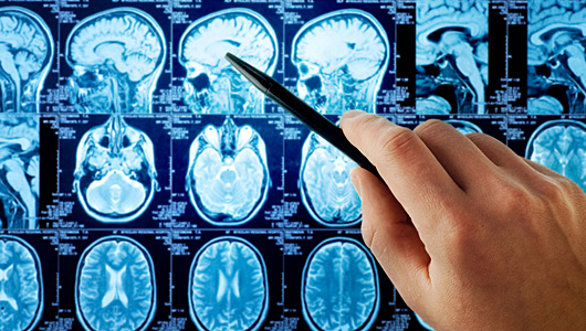 Brain Scans May be able to Detect Suicidal Tendencies