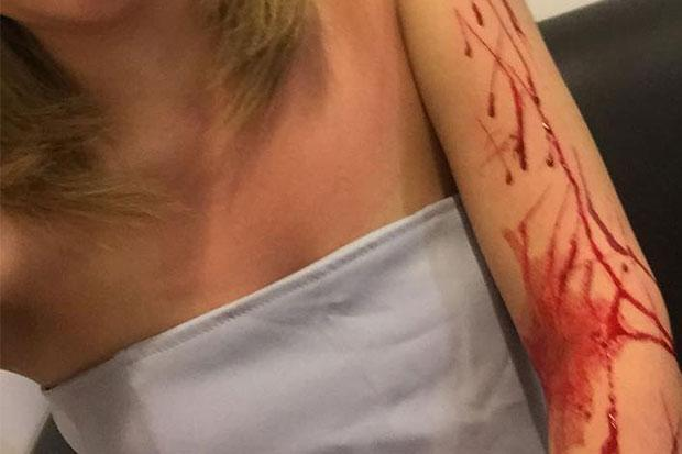 "Thai Socialite Says She Was ""Slashed then Robbed"" by Bangkok Taxi Driver"