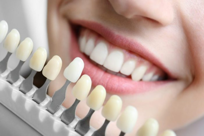 Types of Dental Implant Procedure and their Problems