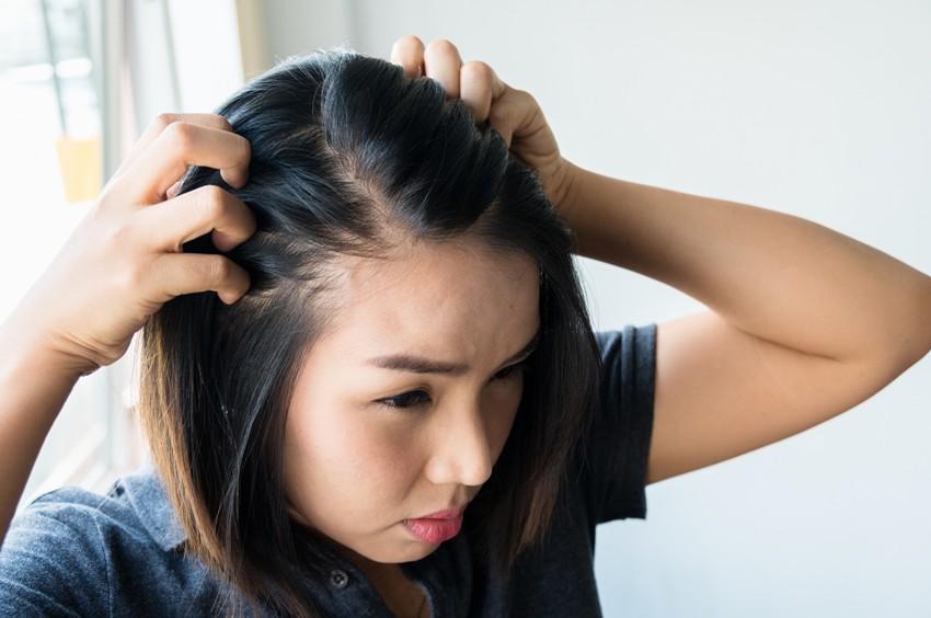 Hair Loss Women, Treatment
