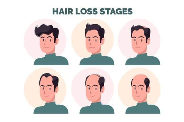 Hair Loss: How Do I Avoid Hair Fall at the Age Of Twenty?