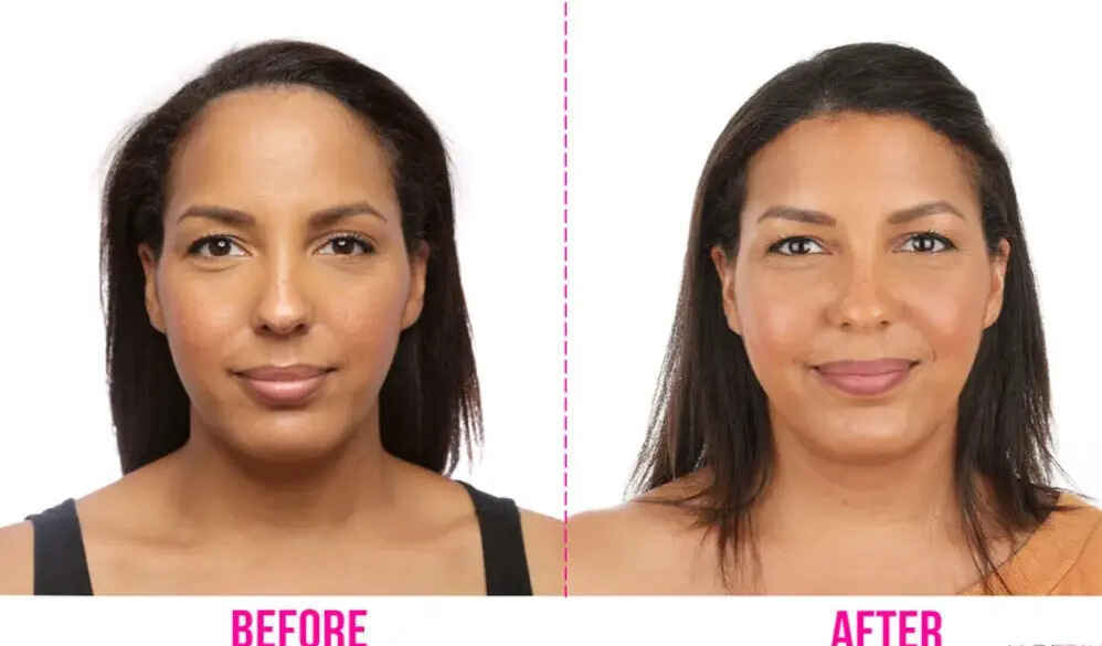 Forehead Reduction (hairline lowering) Surgery