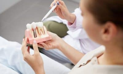 How to Find Affordable Dental Implants