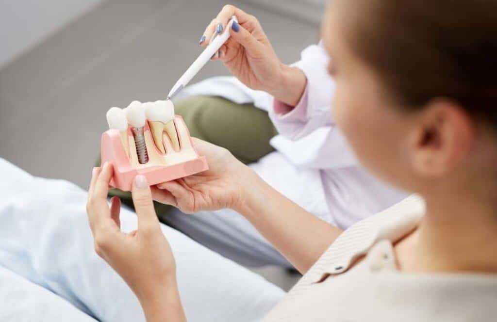 How to Find Affordable Dental Implants -